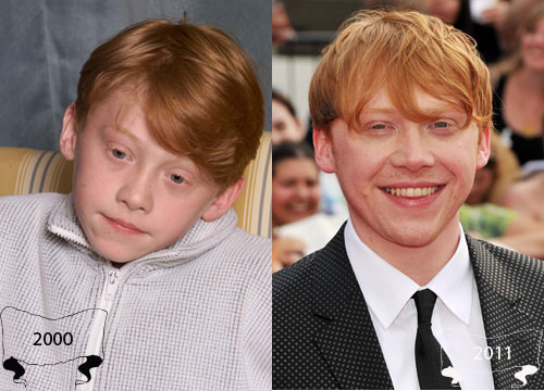 Harry Potter Through the Years - Rupert Grint plays Ron Weasley
