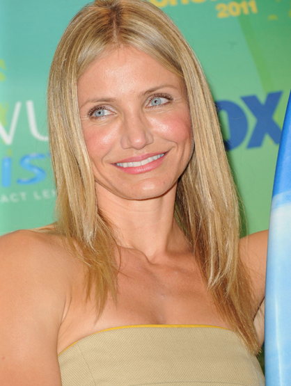 Stars Who Wore Braces - Cameron Diaz: an American actress and former model. Known for The Mask, My Best Friend's Wedding, and There's Something About Mary.