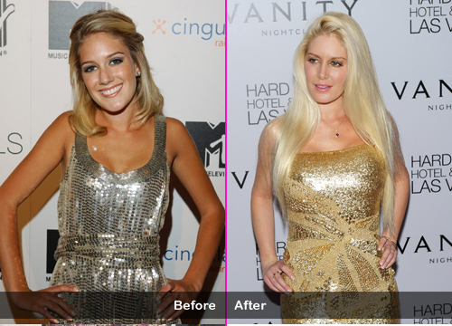 Too Many Surgeries? - Heidi Montag: She was a pretty girl until she got addicted to plastic surgery. One round wasn't enough for her and she had 10 procedures in one day. Can you believe she's only 25?